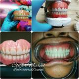 Prótesis Dentales Acrilicas
