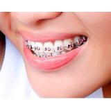 Ortodoncia Quito Brakets Especializado Sin Entrada Incluye