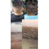 Micropigmentacion  Paramedica Tricopigmentacion Reconstructi